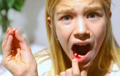 К чему снятся зубы с кровью: во рту или на ладони? основные толкования - к чему снятся зубы с кровью по толкованию разных сонников