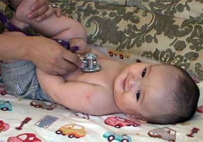 Сложнейшую операцию на пищеводе новорожденного провели в актау